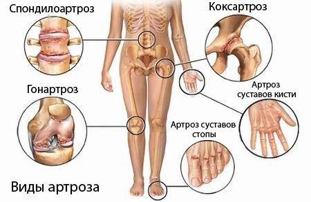 Симптомы остеартроза