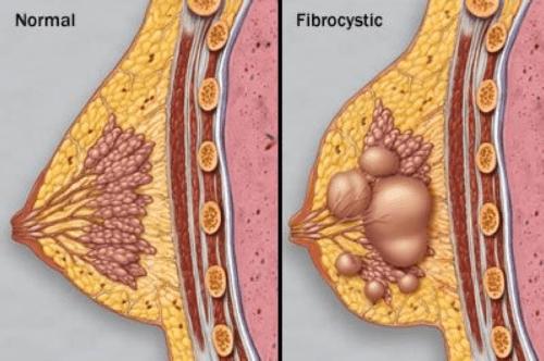 индол 3 карбинол при мастопатии